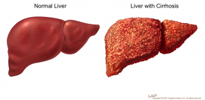 fucked up liver